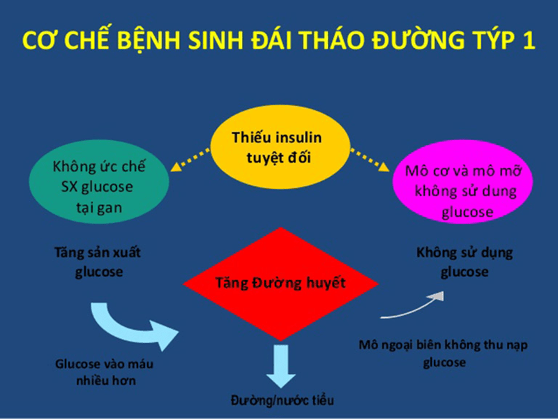 Nguyen-nhan-benh-tieu-duong-tuyp-1
