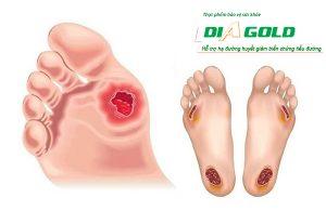 hoại tử chân loét chân tiểu đường