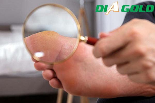 loét bàn chân tiểu đường