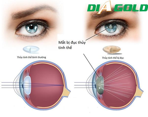 dấu hiệu nhận biết biến chứng mắt tiểu đường