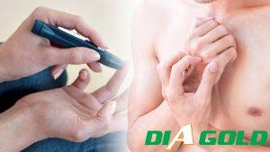 Tiểu đường bị ngứa da